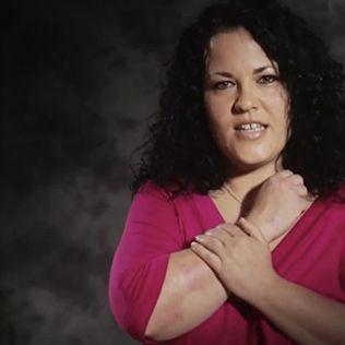 CON P DE PSORIASIS - Campaña de divulgación contra el estigma hacia las personas con Psoriasis
